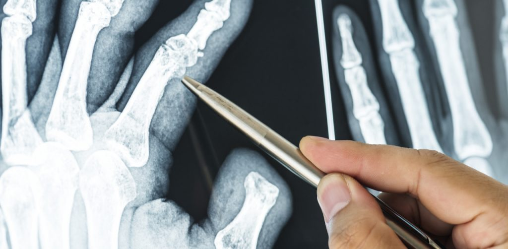 Man pointing at finger joints in hand x-ray